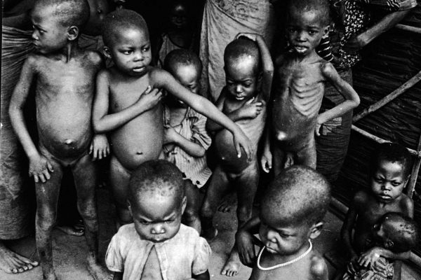 Hunger and Starvation Affecting Half the Human Race Across the World